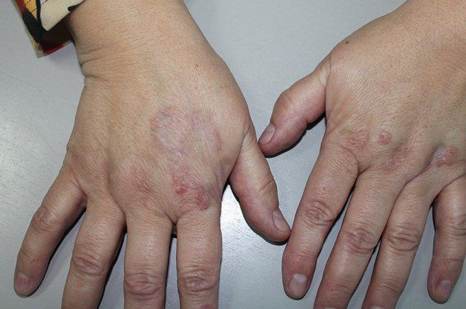 Гнойные гранулемы на руке