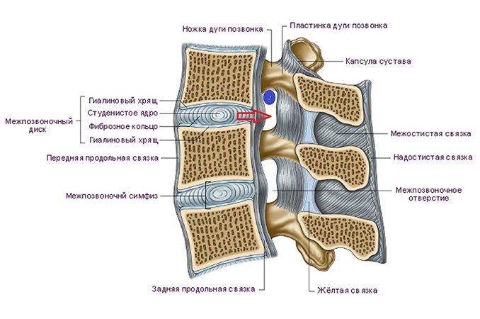 Корешковый синдром причины симптомы илечение