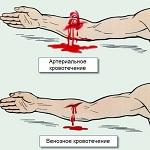 Виды кровотечений — Студопедия