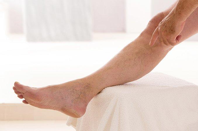 Почему может быть плохое кровообращение в ногах и как это исправить?
