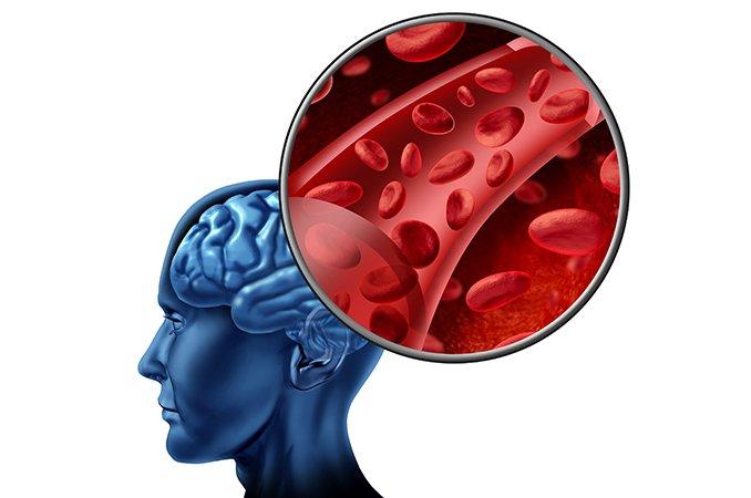 Признаки острого нарушения мозгового кровообращения