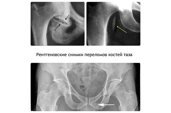Перелом лонной и седалищной кости