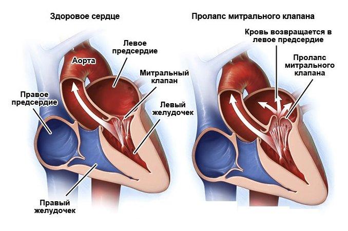 Является ли пролапс митрального клапана пороком сердца