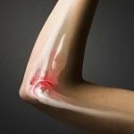 Опухоль кости доброкачественная и злокачественная