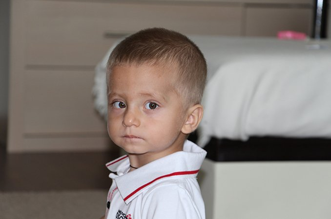 Синдром Денди Уокера у детей: что это такое, причины, симптомы