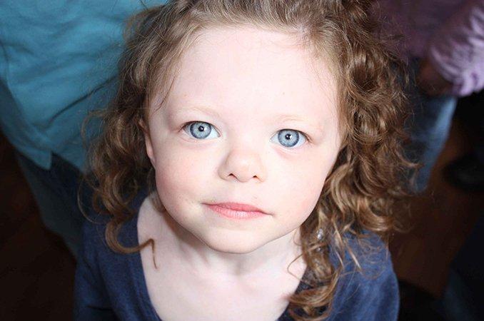 Синдром Вильямса: девочка-эльф Алина