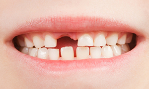Порядок смены молочных зубов на постоянные
