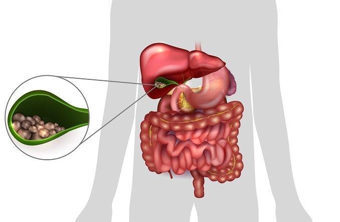 Хронический некалькулезный холецистит диета