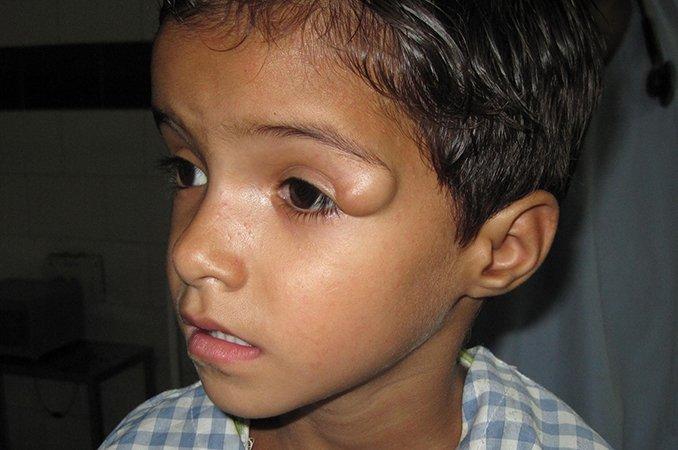 дермоидная киста фото на лице