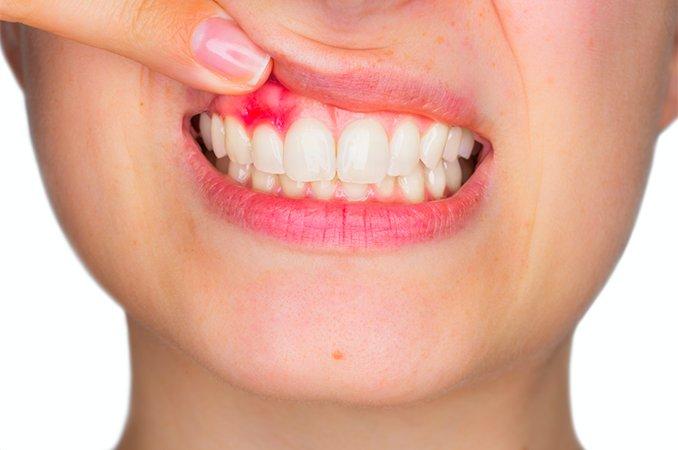 Киста на десне во рту симптомы фото лечение последствия