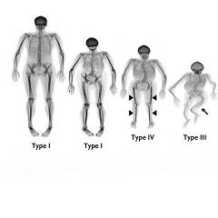 Os tipos de osteogênese imperfeita