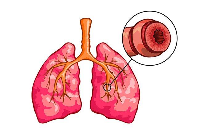 Экспираторная одышка – симптом обструкции дыхательных путей