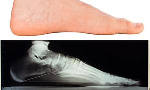 Упражнения близ плоскостопии