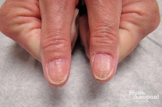 Онихомикоз ногтей - методы лечения, народные средства